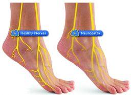 تشخیص نوروپاتی فیبر کوچک